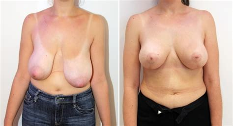 moderate ptosis with breast augmentation photos jpg 1000x543